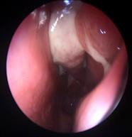 Fig. 1. Nasal endoscopy – middle turbinate purulent secretions